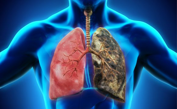 Lung Disease – Lung Cancer