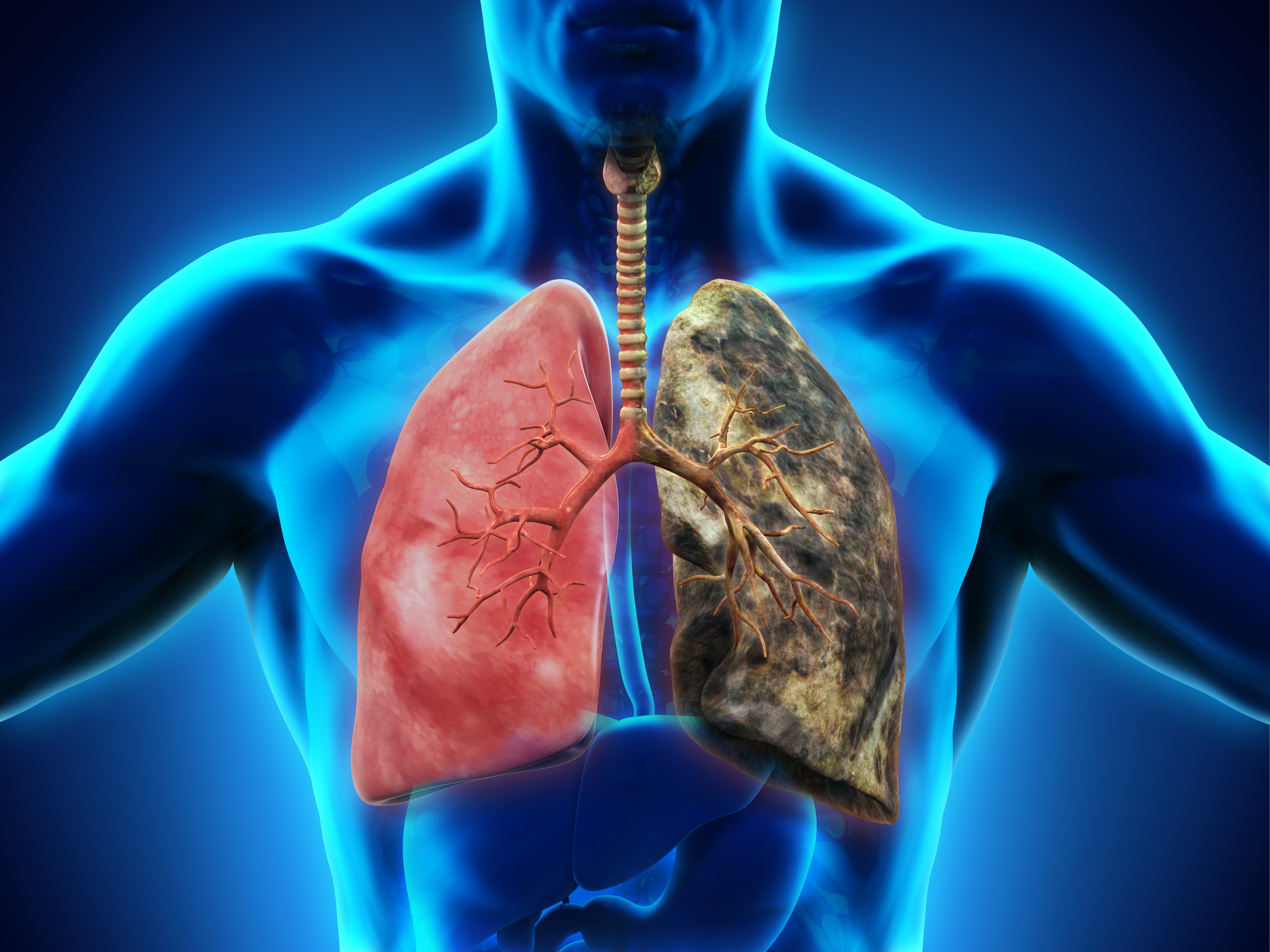 lung disease lung cancer florida lung asthma sleep specialists